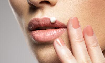 herpes na usni