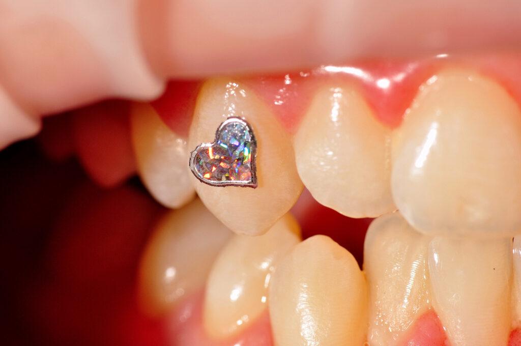 Nakit za zube
