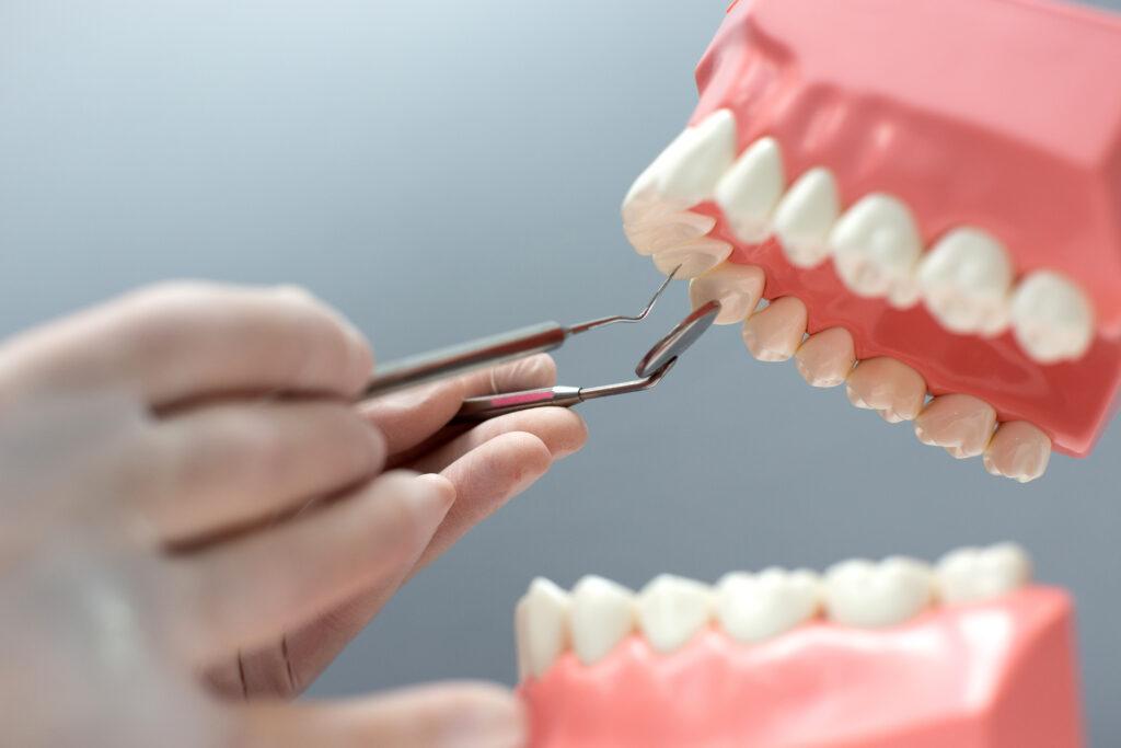 zubni plak