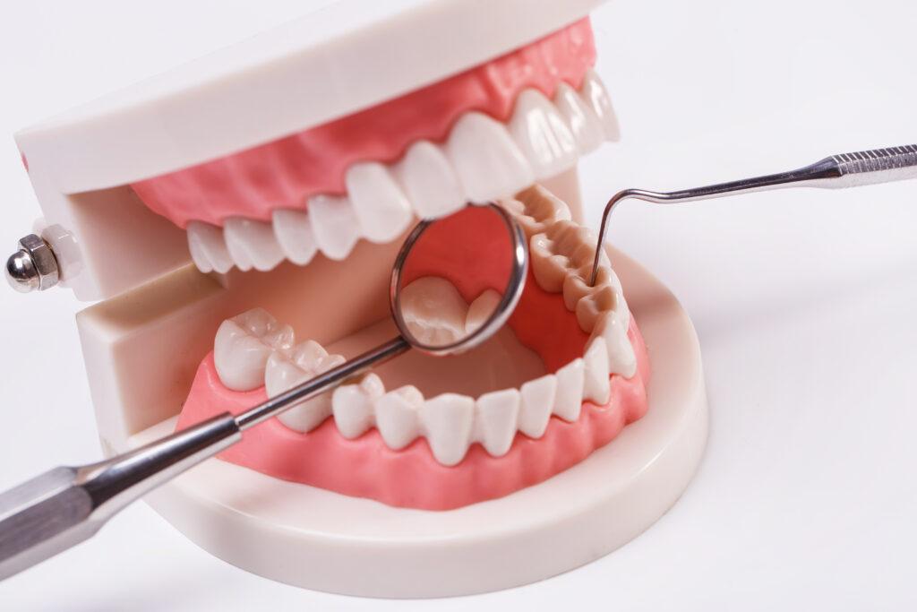 klimavi zubi kod odraslih