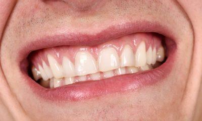 Povlačenje zubnog mesa